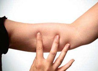 implante-anticonceptivo-hormonal