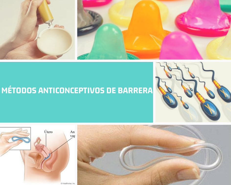 metodos-anticonceptivos-barrera